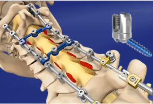 Proficient® Posterior Cervical Spine System