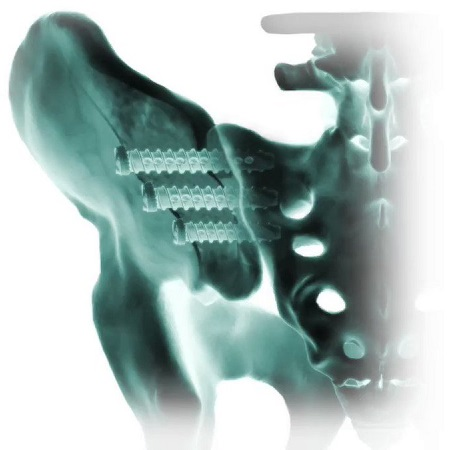 Why the Sacroiliac Joint Fusion market will reach US$ 360..